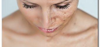 Гиперпигментация кожи лица. Способы лечения пигментных пятен